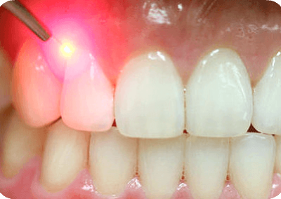 Gingivectomy laser