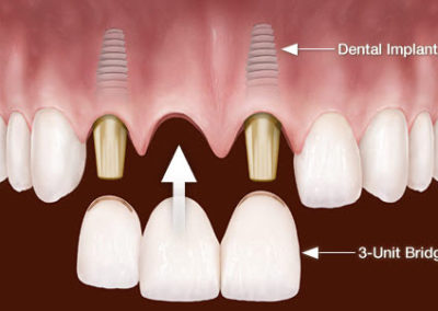 implant fpd